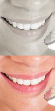 Dentalhygiene / Zahnreinigung