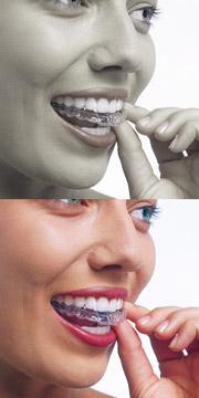 """Die """"unsichtbare Zahnspange"""" von Invisalign"""