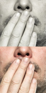 Mundgeruch: Halitosis