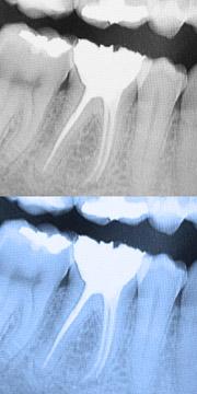 Wurzelkanalbehandlung: Endodontologie